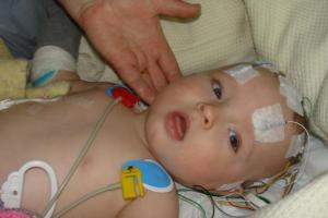 xuất huyết não , màng não ở trẻ