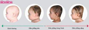 Trẻ mắc chứng đầu phẳng