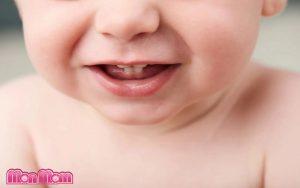 Chậm mọc răng ở trẻ nhỏ có nguy hiểm không?