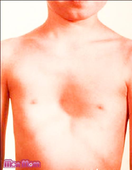 Phẫu thuật điều trị lõm ngực bẩm sinh