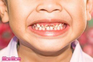Tình trạng trẻ bị sâu răng sữa sớm